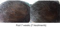 Hair regrowth PU