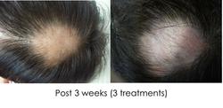 Hair regrowth WY