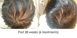 Hair regrowth TS