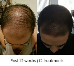 Hair regrowth DG