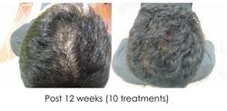 Hair regrowth HL