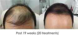 Hair regrowth AC
