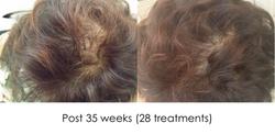 Hair regrowth JC