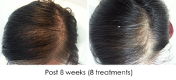 Hair regrowth NH