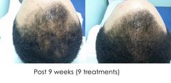 Hair regrowth MO