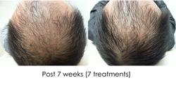 Hair regrowth HF