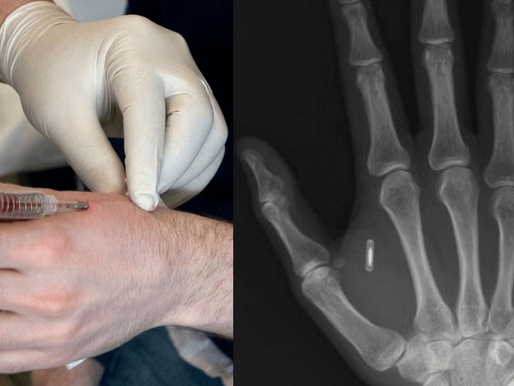 AI Microchip Implantation in human body, boon or curse?