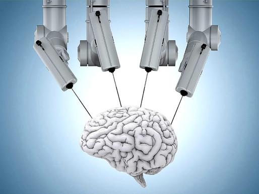 Brain Transplant surgery under Artificial Intelligence unique techniques...