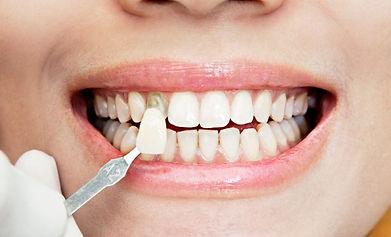 carillas-dentales-precios-en-lima-1024x8