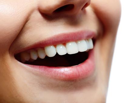 Periodontitis: Causas, síntomas y tratamientos