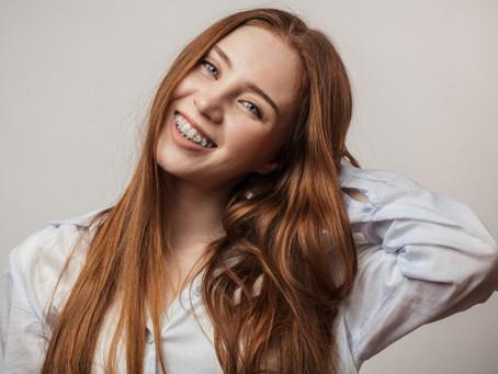 ¿Los resultados de la ortodoncia son para siempre? Todo lo que debes saber sobre la ortodoncia
