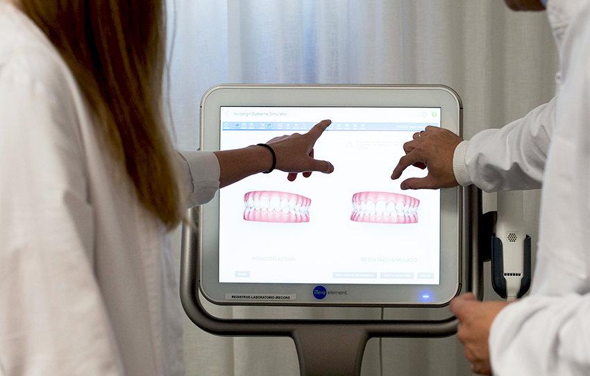 escaner-intraoral-ortodoncia-itero.jpeg