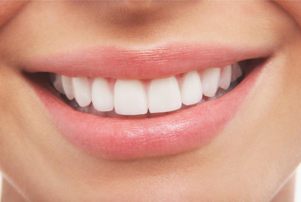Sonrisa de mujer. Clínica Gioia