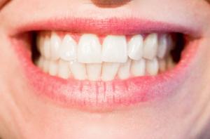 Bruxismo, apretamiento, rechinar, dientes, dentista, dentista elche, elche, gioia,