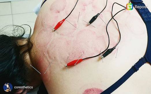 🤪It's finally Friday! What's a better way to relax than e-stim + acupuncture to treat upper back pain.🤔_.jpg