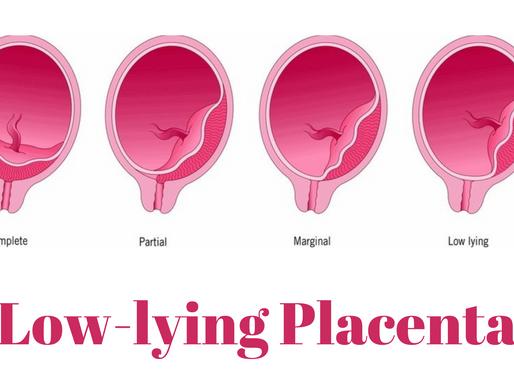 Low-lying Placenta
