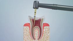 치과 의료 3D 모션그래픽 영상