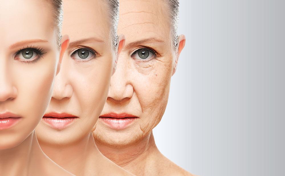 """""""Estudios han revelado que subir y mantener los niveles de Glutatión podría demorar el proceso de envejecimiento en humanos."""" Estudios han revelado que subir y mantener los niveles de Glutatión podría demorar el proceso de envejecimiento en humanos, ya que la falta de ese compuesto en el cuerpo acelera el proceso de envejecimiento y amenaza con la aparición de enfermedades como  procesos neurodegenerativos, enfermedad del Alzheimer, enfermedad de Parkinson enfermedad de Huntington...etc.  """"una especie de """"rejuvenecimiento orgánico"""" mágico y natural""""  Por eso, varios investigadores han aseverado que mientras más altos se tengan los niveles de Glutatión en el organismo, mayor será la  ventaja tanto física, como anímica y energética por sobre quienes sufren el descenso de los niveles del compuesto.    Como consecuencia lógica del deterioro y de la vejez, el sistema inmune pierde poder de respuesta y capacidad de defensa, lo cual hace que aparezca las enfermedades como el cáncer, las infecciones, la diabetes...etc.  A medida que ocurre esta falla en el sistema inmune, vamos quedando más expuestos a células cancerígenas, virus, bacterias, daños ambientales, problemas en las articulaciones, lupus...etc.   En dichos estudios realizados, se usaron los llamados precursores del Glutatión, y se observó de inmediato que los glóbulos blancos se elevaban a tal punto de generar una especie de """"rejuvenecimiento orgánico""""  mágico y natural.  Por estar el Glutatión involucrado en un comportamiento molecular antioxidante y rejuvenecedor de las células, también se le atribuye su característica de promotor de la longevidad, así como de la propiedad más codiciada por hombres y mujeres: revertir el envejecimiento, a través de un elevado nivel del compuesto estrella."""