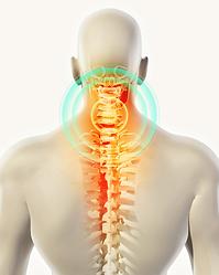 Cervical-Neck-Pain-719x899.png