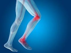 lower limb pain.png