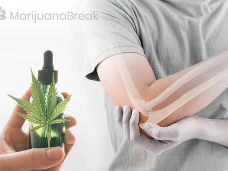 CBD Oil for Fragile X Syndrome