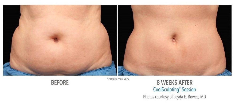 Pretty Flawless CoolSculpting can help with that stubborn Fat!