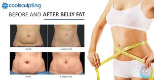 What To Expect During & After CoolSculpting® Treatment