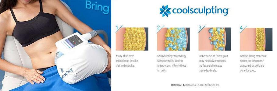 coolsculpting-how-it-works-1170x385.jpg