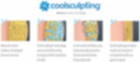 Coolsculpting-1024x455.jpg