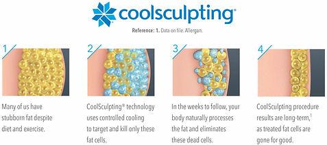 Coolsculpting-1024x455.jpg