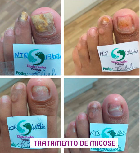 Tratamento de Micose