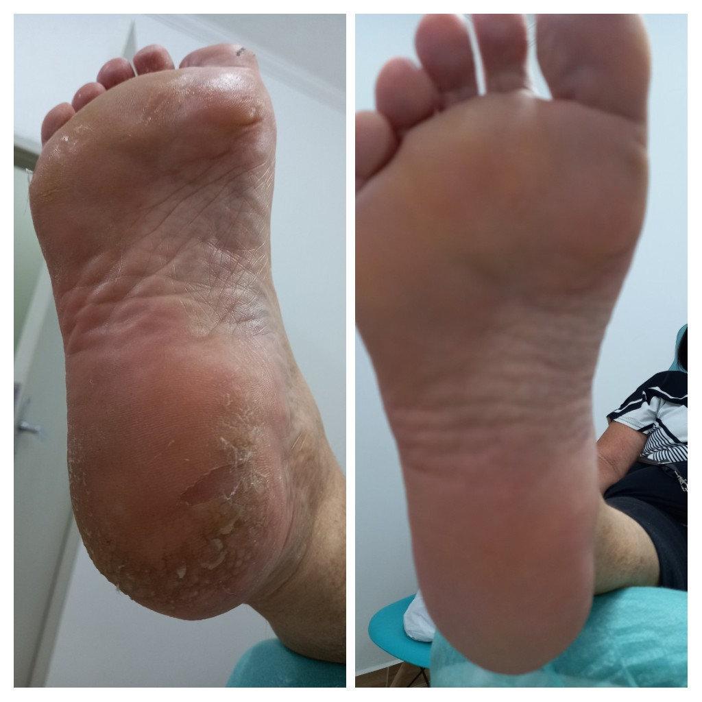 Tratamento de fissuras