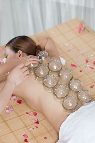 A Chinese medicine cupping of the young