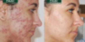 DMK Acne Before & After.jpg