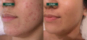 DMK-Acne-DMK Before & After 1.jpg