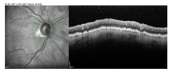 RNFL glaucoma.jpg