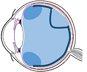 retinal detachment1f.png