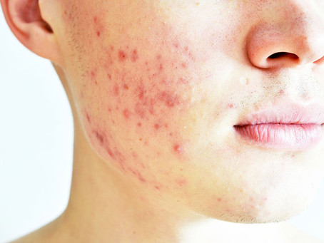 Are You Suffering from Acne?
