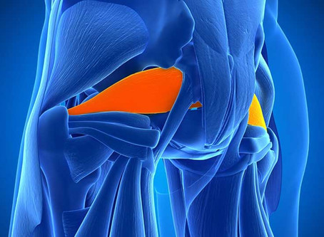 Suffering from Piriformis Syndrome?