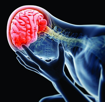 What You Need to Know About Concussions