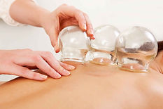cupping at tianjin acupuncture