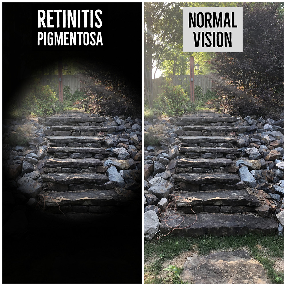 A photo comparing sight with retinitis pigmentosa and normal vision.  The retinitis pigmentosa shot has removed the periphery from the image, only showing the view in the center; The picture is of stairs in Shannon's back yard.