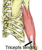 treat triceps tendinopathy.jpg