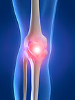 treat tendonitis patella