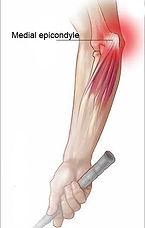 golfer's-elbow.jpg
