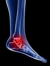 treat tendonitis peroneal.jpg