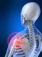 treat supraspinatus tendinopathy iheal P