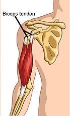 Treatment for biceps tendinopathy.jpg