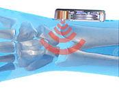 treatment wrist tendonitis