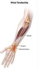 wrist-tendonitis.jpg